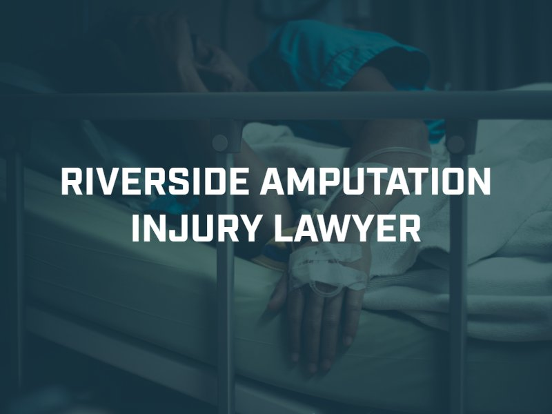 Riverside Amputation Injury Lawyer
