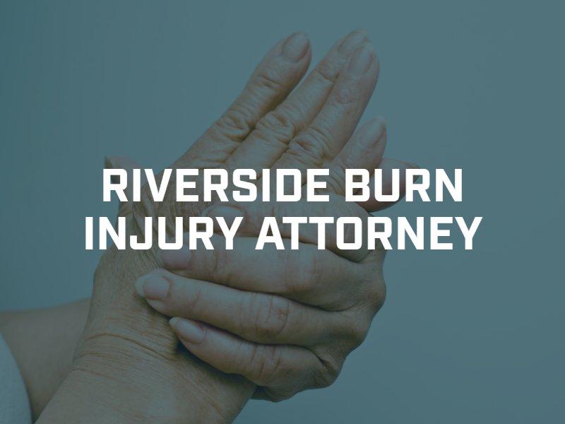 Riverside Burn Injury Lawyer
