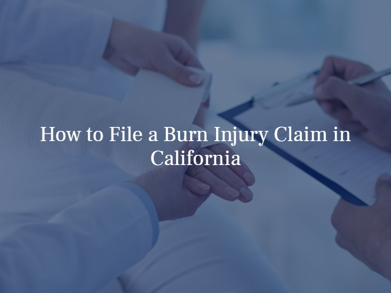 how to file a burn injury claim in california
